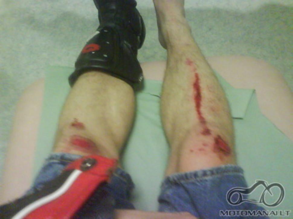 Ar esate kada nors patekęs į avariją su motociklu?
